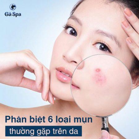 6 loại mụn thường gặp trên da