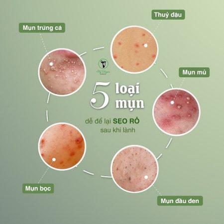 Những loại da dễ bị sẹo rỗ sau khi lành mụn