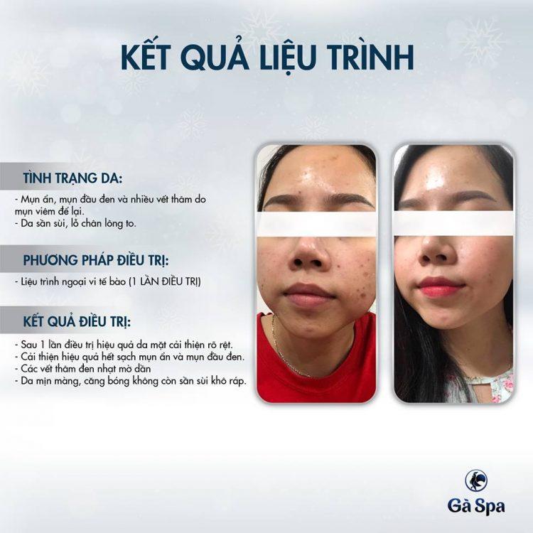 Review Khách Hàng Ngoại Vi Tế Bào (22/1/2019)