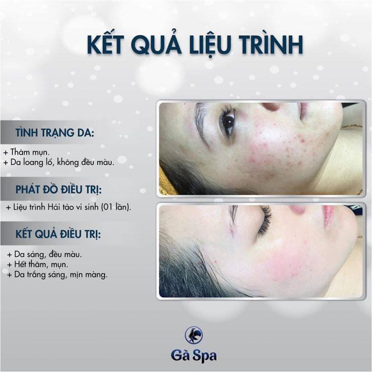 Review Khách Hàng làm Hải Tảo Vi Sinh (18/2/2019)