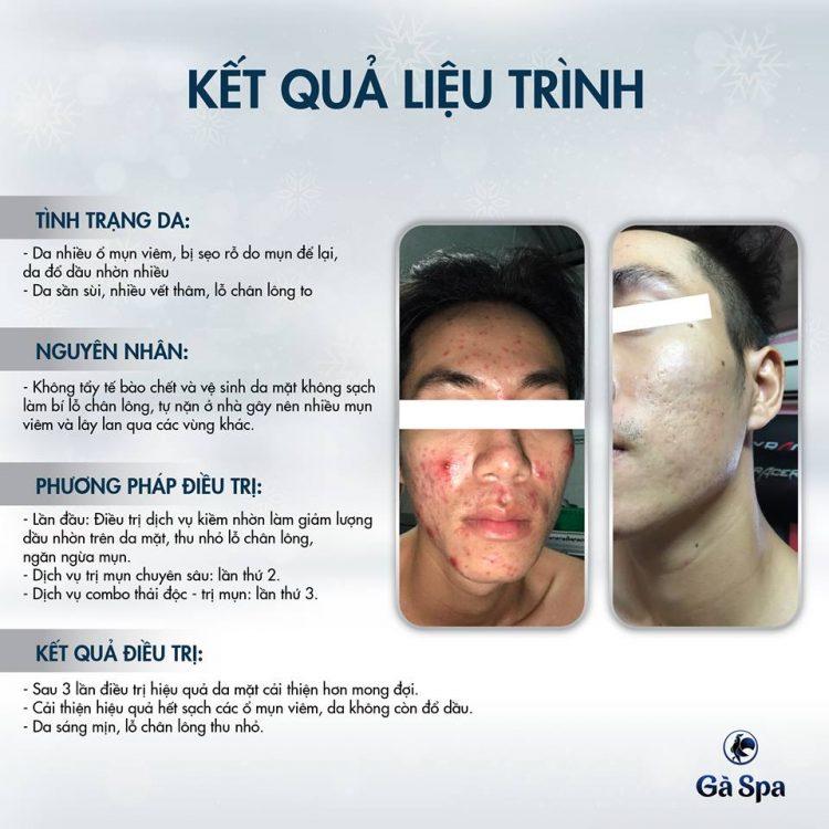 Review Vlogger Huy Nguyễn ở Gà Spa